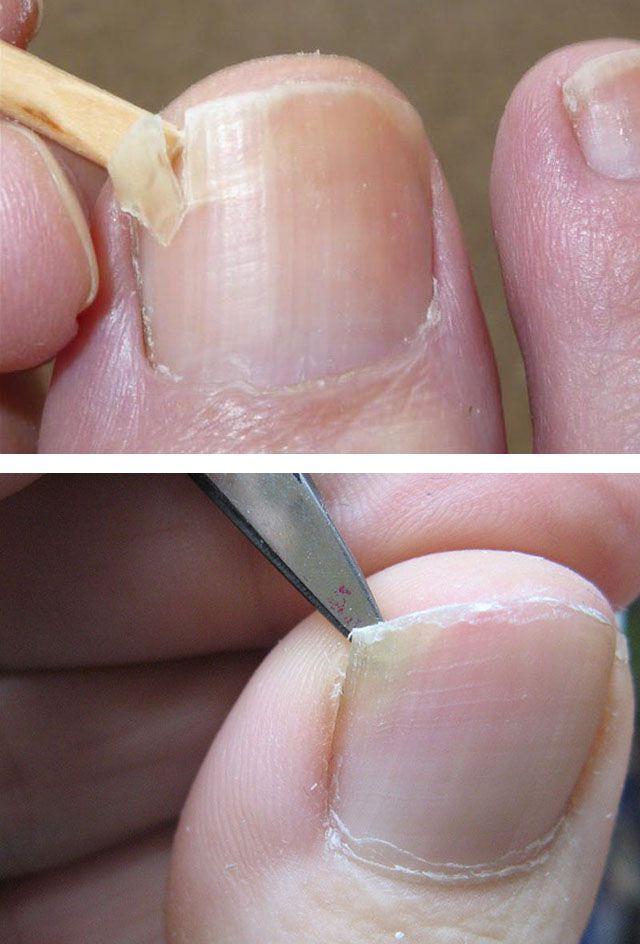 Фото прижигание бородавок жидким азотом последствия фото после выжигания