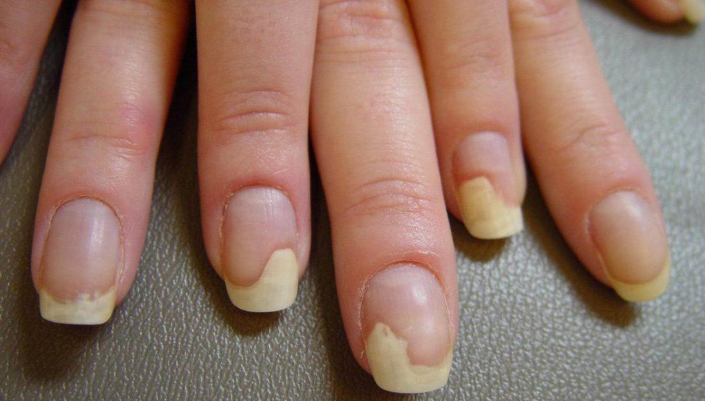 Дистрофия ногтя - причины виды и лечение народными средствами