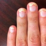 Онихолизис на руках